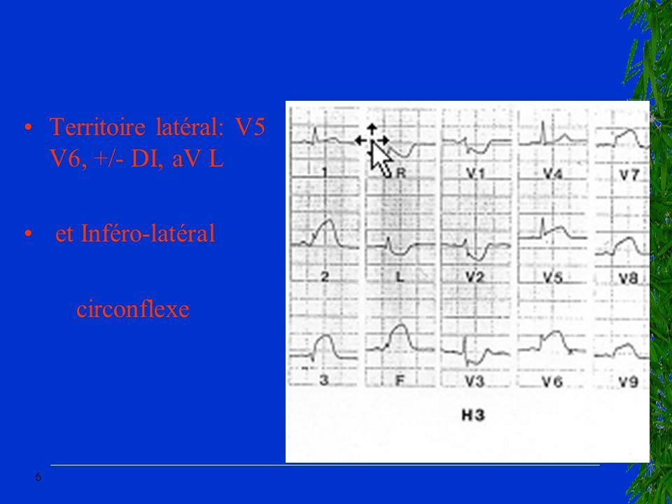 6 Territoire latéral: V5 V6, +/- DI, aV L et Inféro-latéral circonflexe