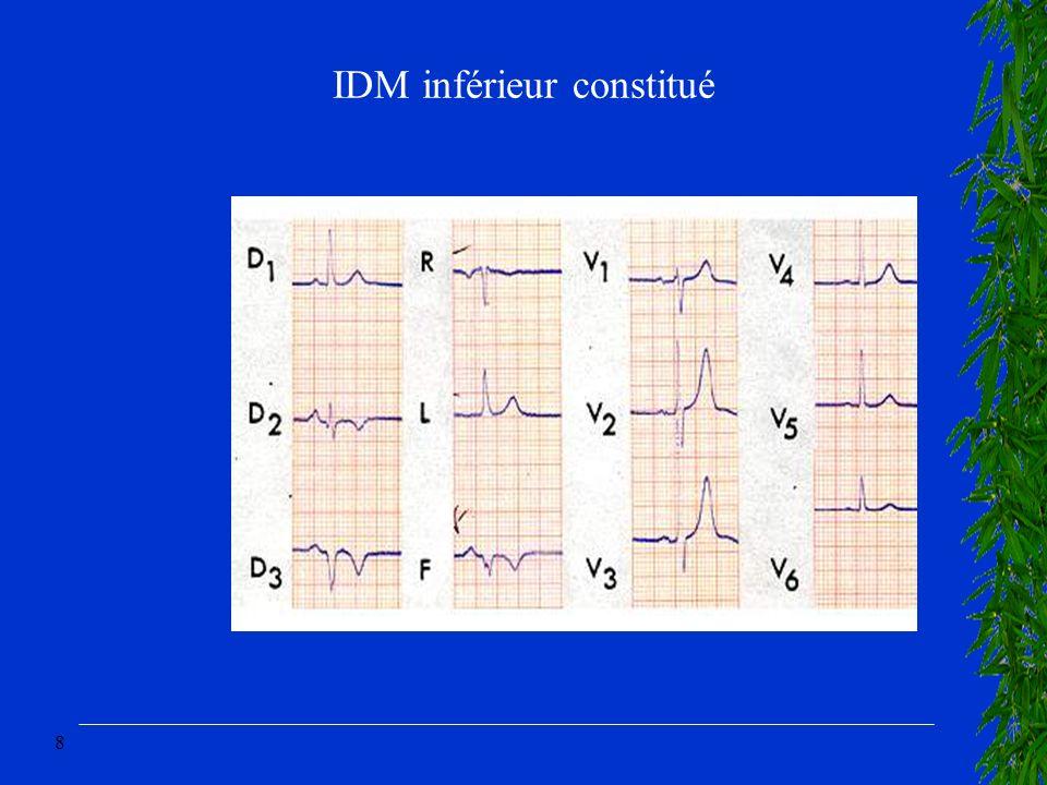 8 IDM inférieur constitué