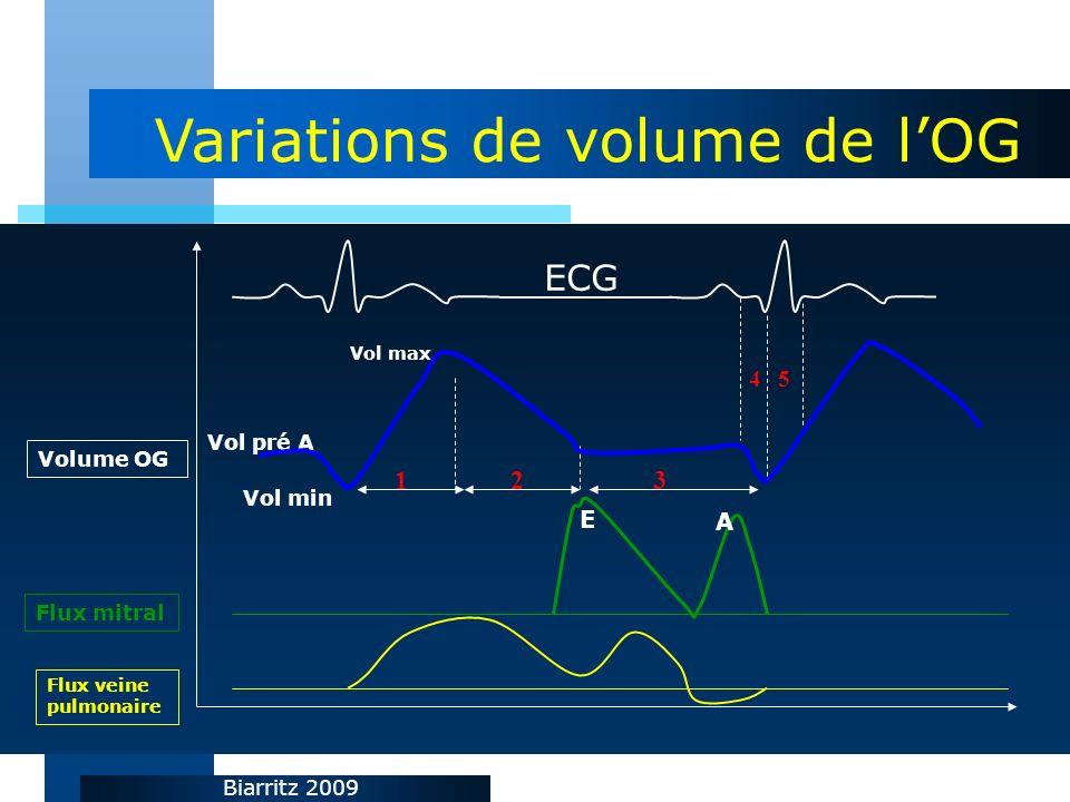 Biarritz 2009 Volume OG Flux mitral ECG Vol max Vol min Vol pré A 123 E A 45 Flux veine pulmonaire Variations de volume de lOG