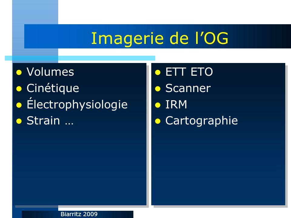 Biarritz 2009 Imagerie de lOG Volumes Cinétique Électrophysiologie Strain … Volumes Cinétique Électrophysiologie Strain … ETT ETO Scanner IRM Cartogra