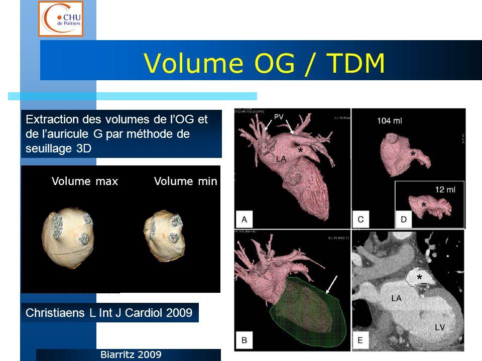 Biarritz 2009 Volume OG / TDM Extraction des volumes de lOG et de lauricule G par méthode de seuillage 3D Christiaens L Int J Cardiol 2009 Volume maxV