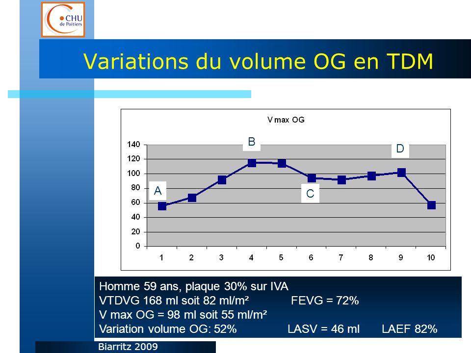 Biarritz 2009 Variations du volume OG en TDM Homme 59 ans, plaque 30% sur IVA VTDVG 168 ml soit 82 ml/m² FEVG = 72% V max OG = 98 ml soit 55 ml/m² Variation volume OG: 52% LASV = 46 mlLAEF 82% A C D B