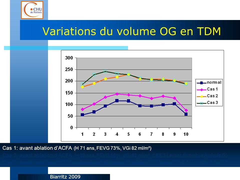 Biarritz 2009 Variations du volume OG en TDM Cas 1: avant ablation dACFA (H 71 ans, FEVG 73%, VGi 82 ml/m²) Cas 2: avant ablation dACFA (H 58 ans, FEVG 56%, VGi 92 ml/m², CEE 3 j avant, thrombus Auricule G) Cas 3: avant ablation dACFA + plastie mitrale pour IM sévère (H 76 ans, FEVG 54%, VGi 150 ml/M²)