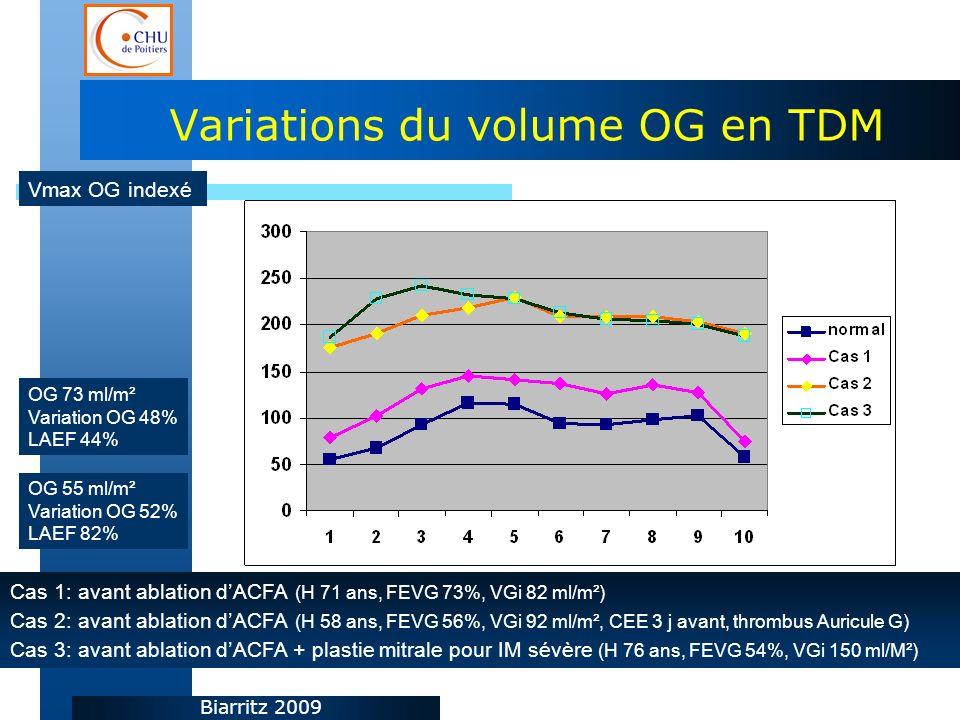 Biarritz 2009 Variations du volume OG en TDM Cas 1: avant ablation dACFA (H 71 ans, FEVG 73%, VGi 82 ml/m²) Cas 2: avant ablation dACFA (H 58 ans, FEVG 56%, VGi 92 ml/m², CEE 3 j avant, thrombus Auricule G) Cas 3: avant ablation dACFA + plastie mitrale pour IM sévère (H 76 ans, FEVG 54%, VGi 150 ml/M²) OG 55 ml/m² Variation OG 52% LAEF 82% OG 73 ml/m² Variation OG 48% LAEF 44% Vmax OG indexé