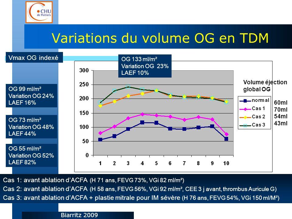 Biarritz 2009 Variations du volume OG en TDM Cas 1: avant ablation dACFA (H 71 ans, FEVG 73%, VGi 82 ml/m²) Cas 2: avant ablation dACFA (H 58 ans, FEVG 56%, VGi 92 ml/m², CEE 3 j avant, thrombus Auricule G) Cas 3: avant ablation dACFA + plastie mitrale pour IM sévère (H 76 ans, FEVG 54%, VGi 150 ml/M²) OG 55 ml/m² Variation OG 52% LAEF 82% OG 73 ml/m² Variation OG 48% LAEF 44% OG 99 ml/m² Variation OG 24% LAEF 16% OG 133 ml/m² Variation OG 23% LAEF 10% Vmax OG indexé Volume éjection global OG 60ml 70ml 54ml 43ml
