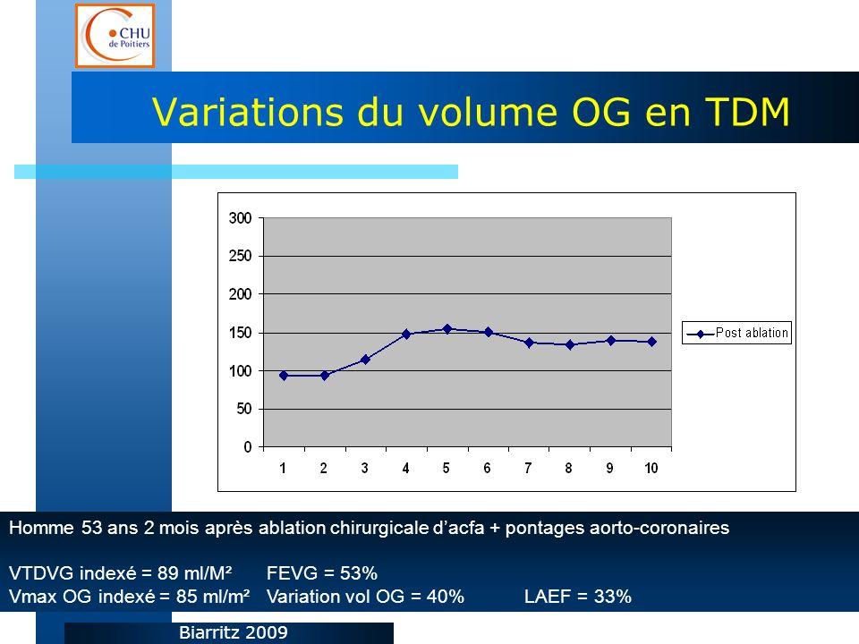 Biarritz 2009 Variations du volume OG en TDM Homme 53 ans 2 mois après ablation chirurgicale dacfa + pontages aorto-coronaires VTDVG indexé = 89 ml/M² FEVG = 53% Vmax OG indexé = 85 ml/m²Variation vol OG = 40%LAEF = 33%