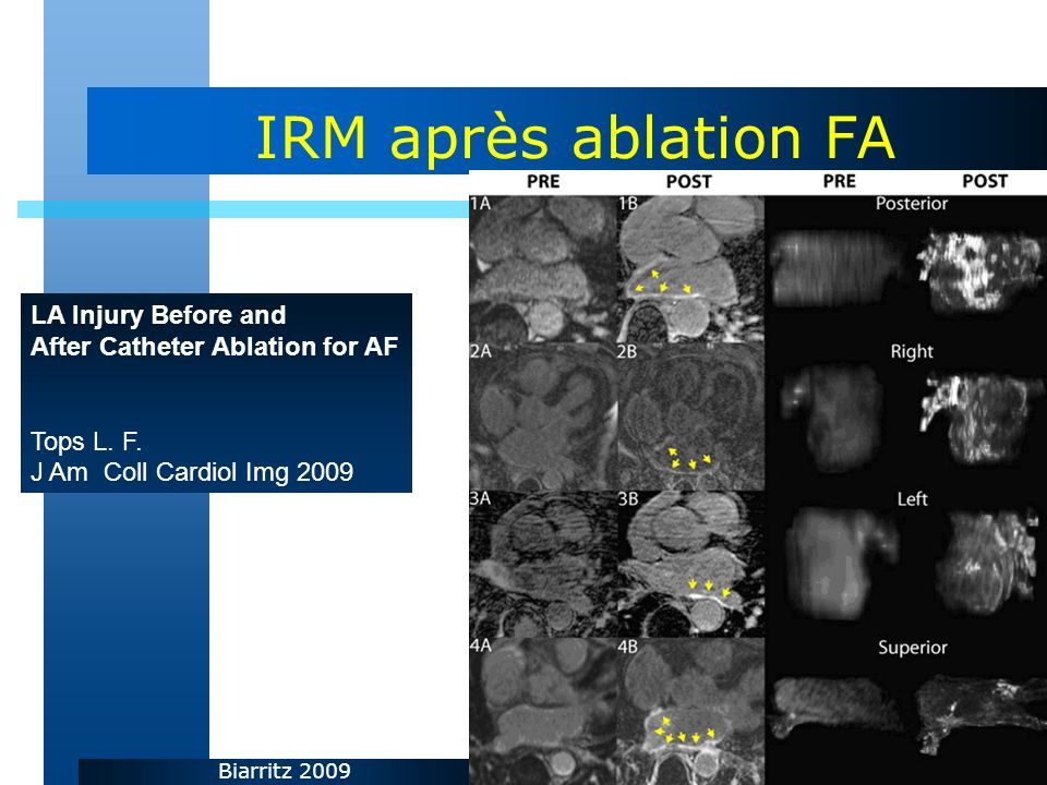 Biarritz 2009 IRM après ablation FA LA Injury Before and After Catheter Ablation for AF Tops L.