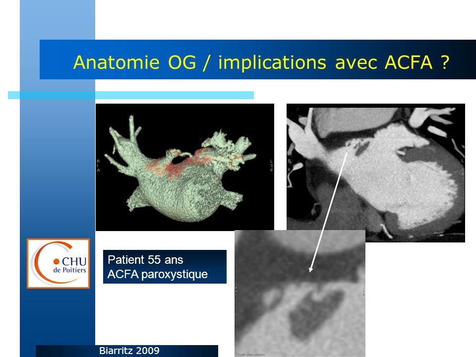 Biarritz 2009 Anatomie OG / implications avec ACFA ? Patient 55 ans ACFA paroxystique