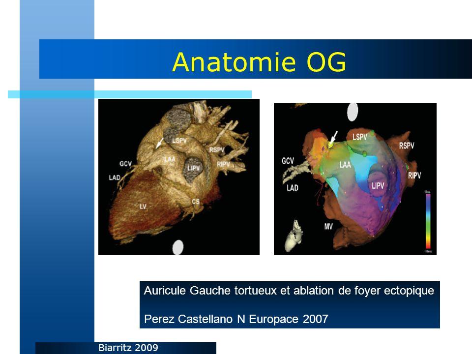 Biarritz 2009 Anatomie OG Auricule Gauche tortueux et ablation de foyer ectopique Perez Castellano N Europace 2007