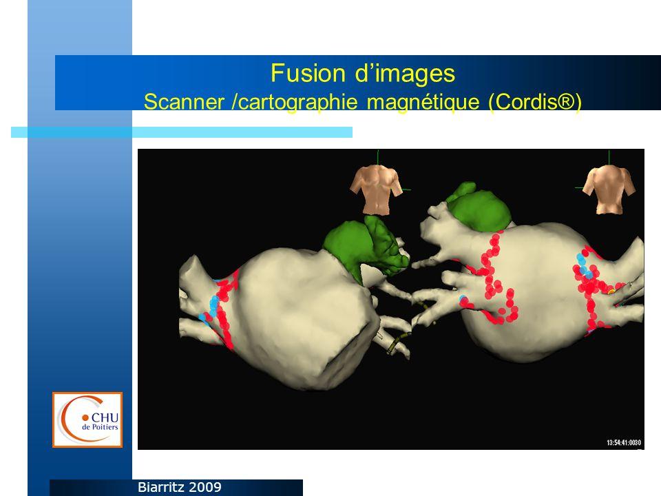 Biarritz 2009 Fusion dimages Scanner /cartographie magnétique (Cordis®)