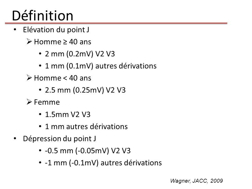 Définition Elévation du point J Homme 40 ans 2 mm (0.2mV) V2 V3 1 mm (0.1mV) autres dérivations Homme < 40 ans 2.5 mm (0.25mV) V2 V3 Femme 1.5mm V2 V3