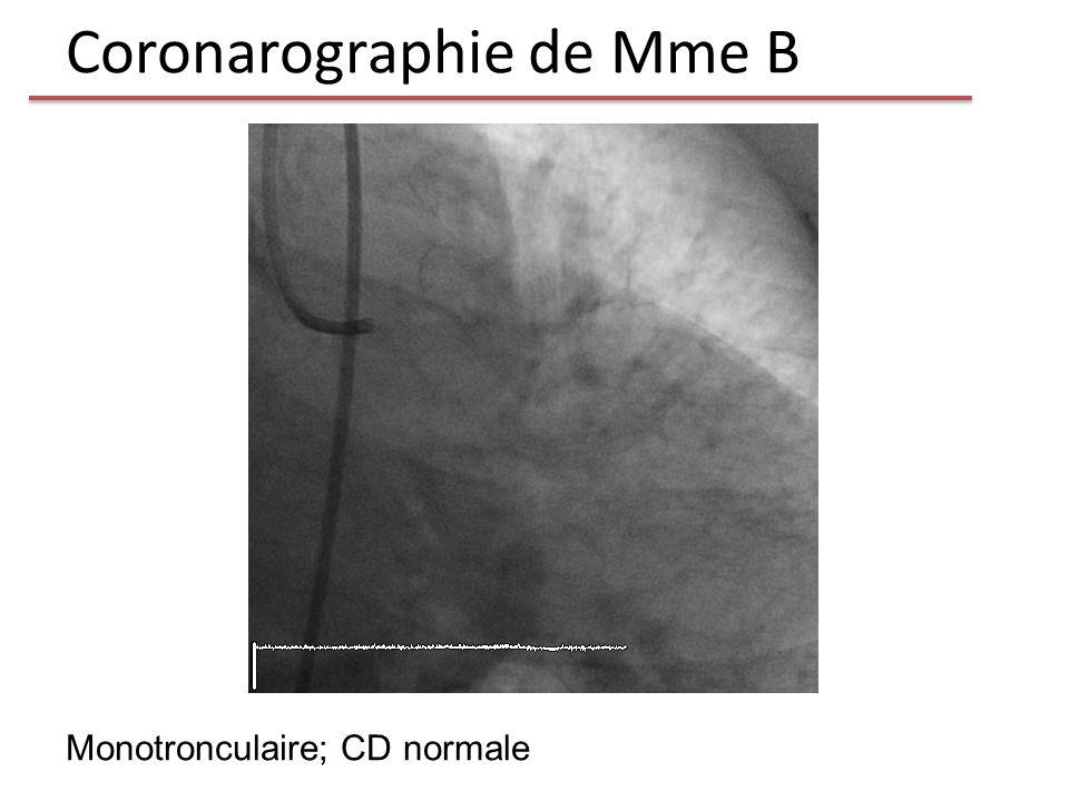 Coronarographie de Mme B Monotronculaire; CD normale