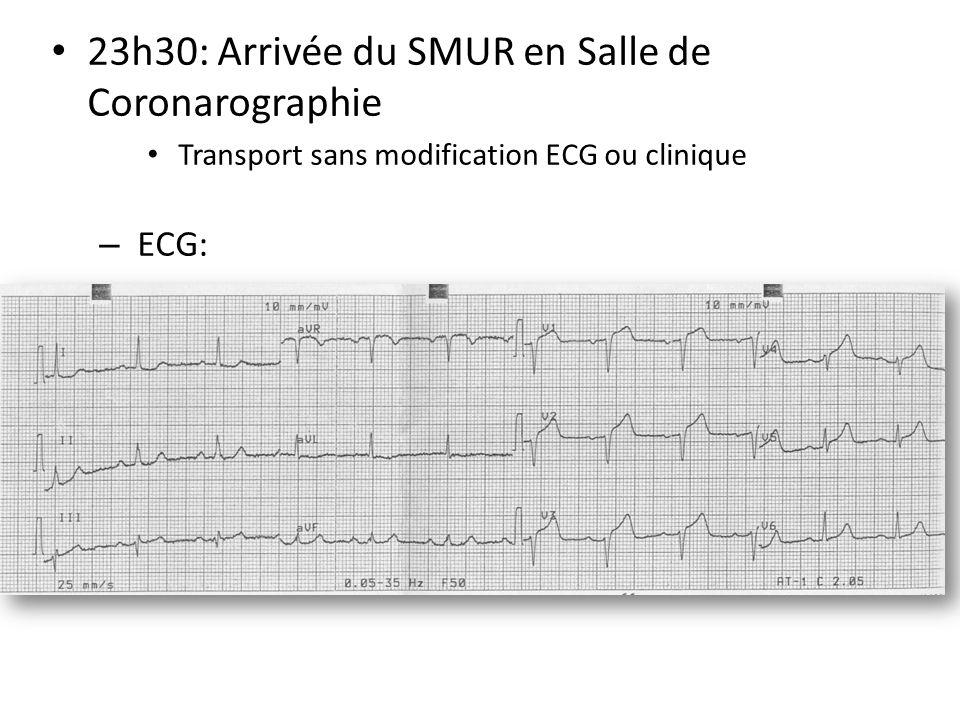 23h30: Arrivée du SMUR en Salle de Coronarographie Transport sans modification ECG ou clinique – ECG: