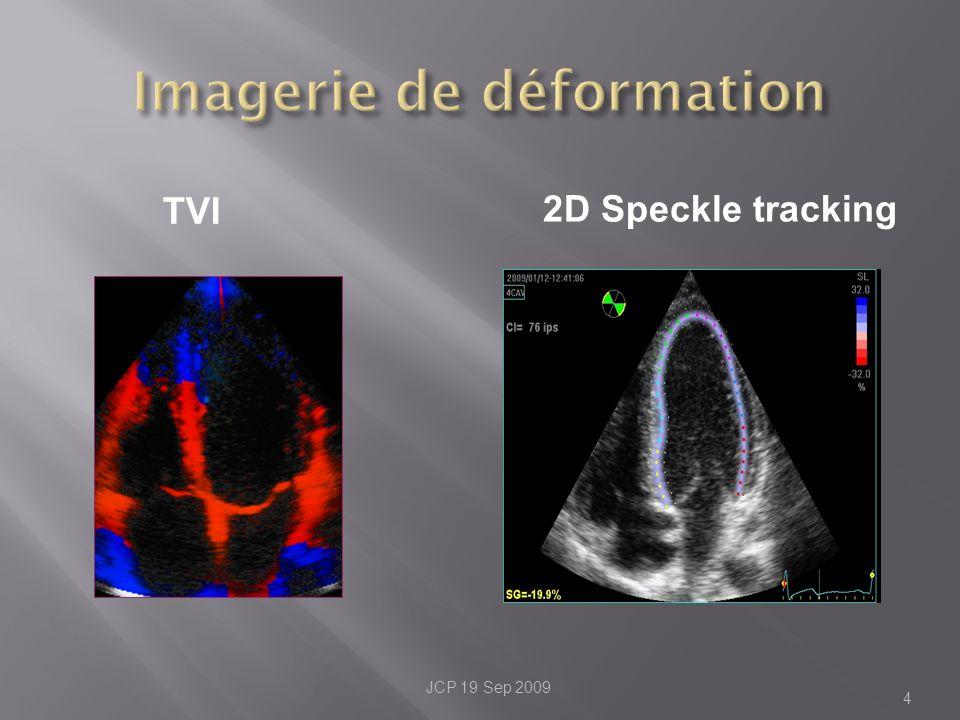 4 2D Speckle tracking TVI