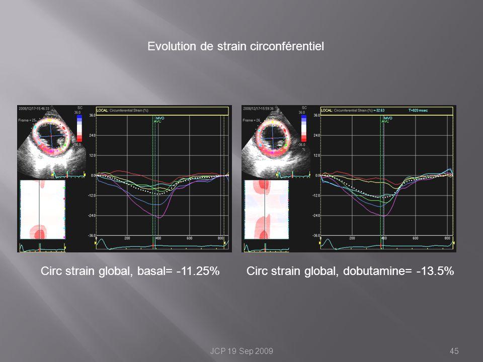 Evolution de strain circonférentiel Circ strain global, basal= -11.25% 45JCP 19 Sep 2009 Circ strain global, dobutamine= -13.5%