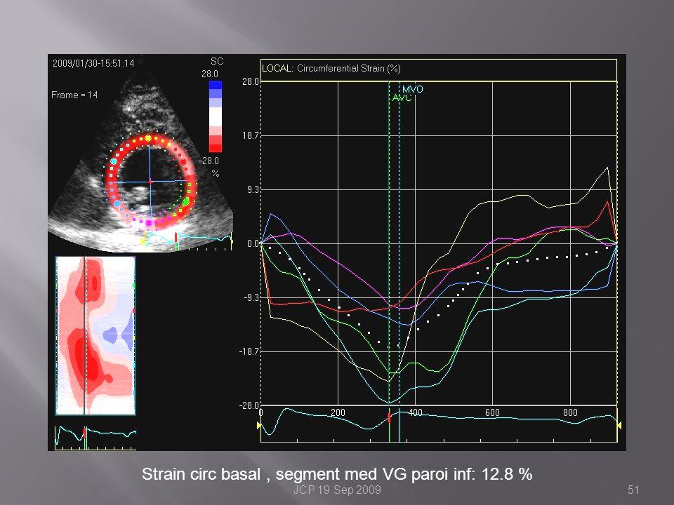 Strain circ basal, segment med VG paroi inf: 12.8 % 51JCP 19 Sep 2009