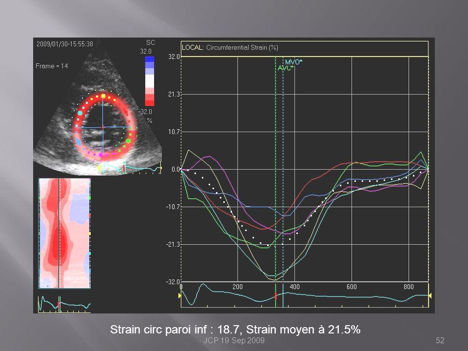 Strain circ paroi inf : 18.7, Strain moyen à 21.5% 52JCP 19 Sep 2009