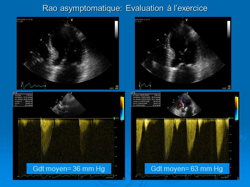 Ennezat, Echocardiography, 2007: Rao serrés gradient bas FEVG altérée (N= 17) Dobutamine: ITV S/Ao, FEVG Dobutamine: ITV S/Ao, FEVG Exercice: FEVG, ITV S/Ao= Exercice: FEVG, ITV S/Ao= MAIS: PAS à lexercice (pas sous dobutamine) de post charge de post charge contrainte myocardique contrainte myocardique Evaluation réserve contractile Rao: EE non adéquate.