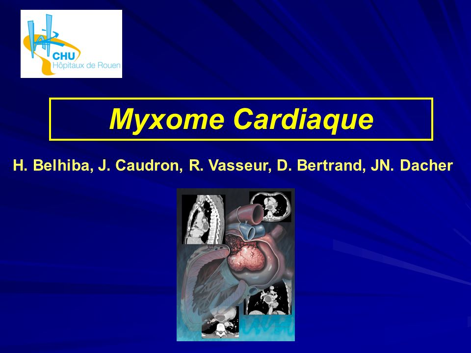 Myxome Cardiaque H. Belhiba, J. Caudron, R. Vasseur, D. Bertrand, JN. Dacher