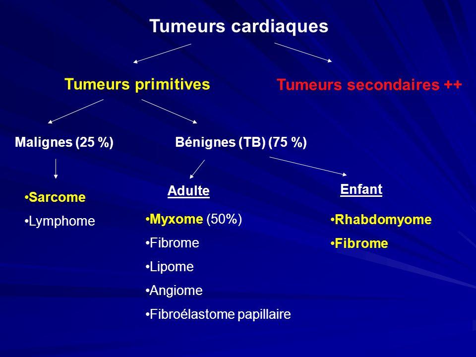 Tumeurs cardiaques Tumeurs primitives Tumeurs secondaires ++ Malignes (25 %)Bénignes (TB) (75 %) Myxome (50%) Fibrome Lipome Angiome Fibroélastome pap