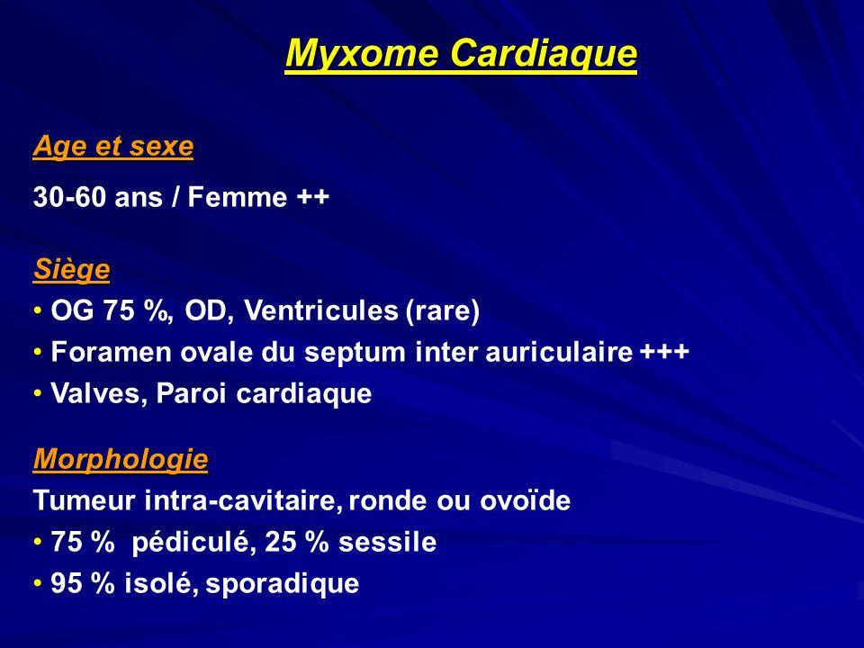 Age et sexe 30-60 ans / Femme ++Siège OG 75 %, OD, Ventricules (rare) Foramen ovale du septum inter auriculaire +++ Valves, Paroi cardiaqueMorphologie