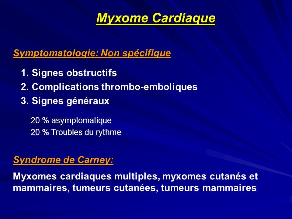 Symptomatologie: Non spécifique 1. Signes obstructifs 2. Complications thrombo-emboliques 3. Signes généraux 20 % asymptomatique 20 % Troubles du ryth