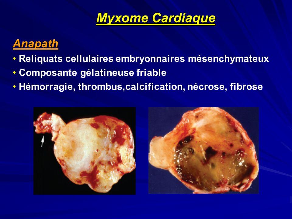 Anapath Reliquats cellulaires embryonnaires mésenchymateux Composante gélatineuse friable Hémorragie, thrombus,calcification, nécrose, fibrose Myxome