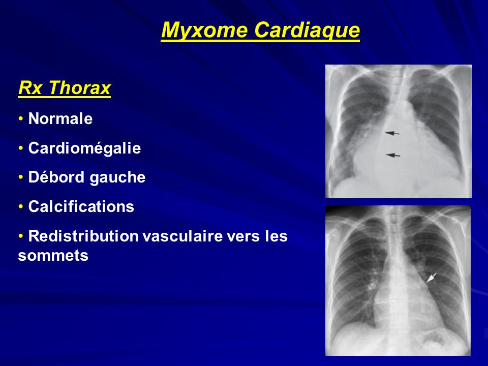 Rx Thorax Normale Cardiomégalie Débord gauche Calcifications Redistribution vasculaire vers les sommets Myxome Cardiaque