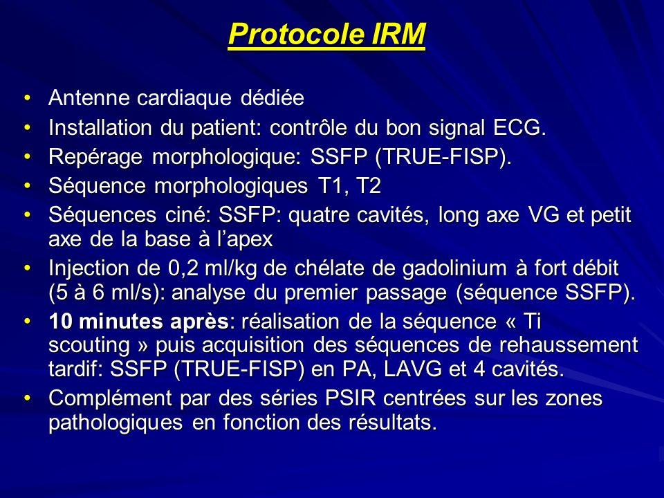 Protocole IRM Antenne cardiaque dédiée Installation du patient: contrôle du bon signal ECG.Installation du patient: contrôle du bon signal ECG. Repéra