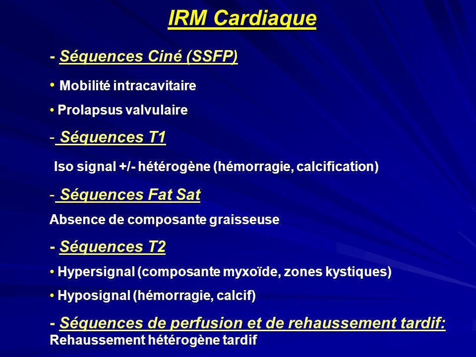 - Séquences Ciné (SSFP) Mobilité intracavitaire Prolapsus valvulaire - Séquences T1 Iso signal +/- hétérogène (hémorragie, calcification) - Séquences