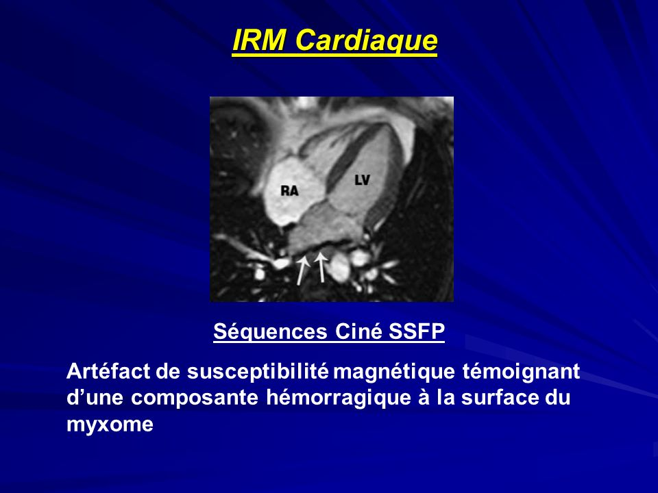Séquences Ciné SSFP Artéfact de susceptibilité magnétique témoignant dune composante hémorragique à la surface du myxome IRM Cardiaque