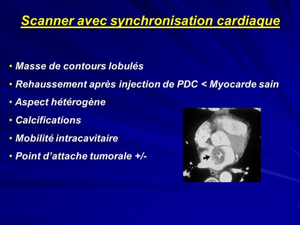 Masse de contours lobulés Rehaussement après injection de PDC < Myocarde sain Aspect hétérogène Calcifications Mobilité intracavitaire Point dattache