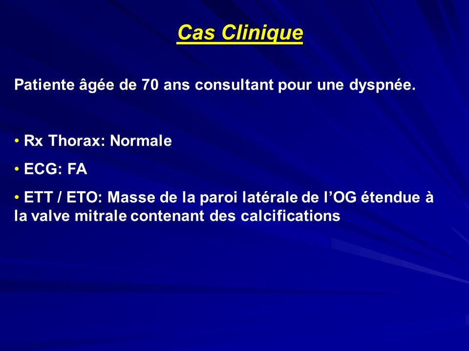 Cas Clinique Patiente âgée de 70 ans consultant pour une dyspnée. Rx Thorax: Normale ECG: FA ETT / ETO: Masse de la paroi latérale de lOG étendue à la