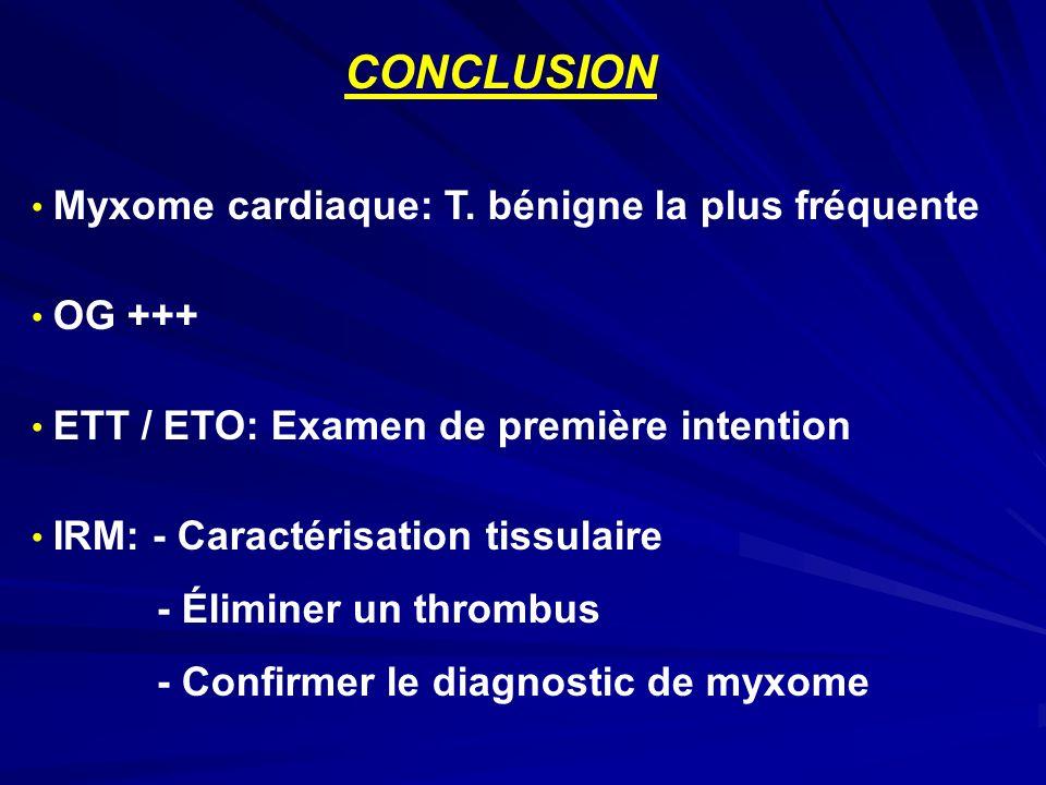 CONCLUSION Myxome cardiaque: T. bénigne la plus fréquente OG +++ ETT / ETO: Examen de première intention IRM: - Caractérisation tissulaire - Éliminer