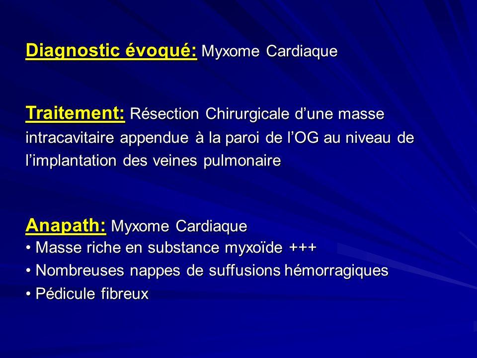 Diagnostic évoqué: Myxome Cardiaque Traitement: Résection Chirurgicale dune masse intracavitaire appendue à la paroi de lOG au niveau de limplantation