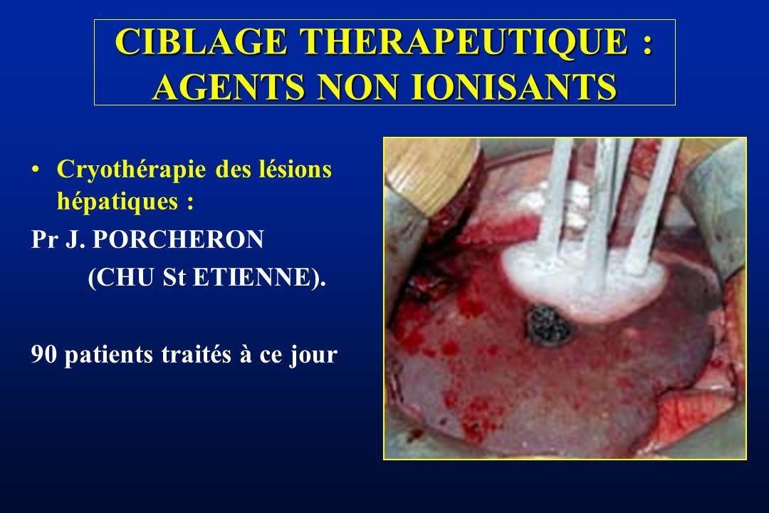 CIBLAGE THERAPEUTIQUE : AGENTS NON IONISANTS Cryothérapie des lésions hépatiques : Pr J. PORCHERON (CHU St ETIENNE). 90 patients traités à ce jour