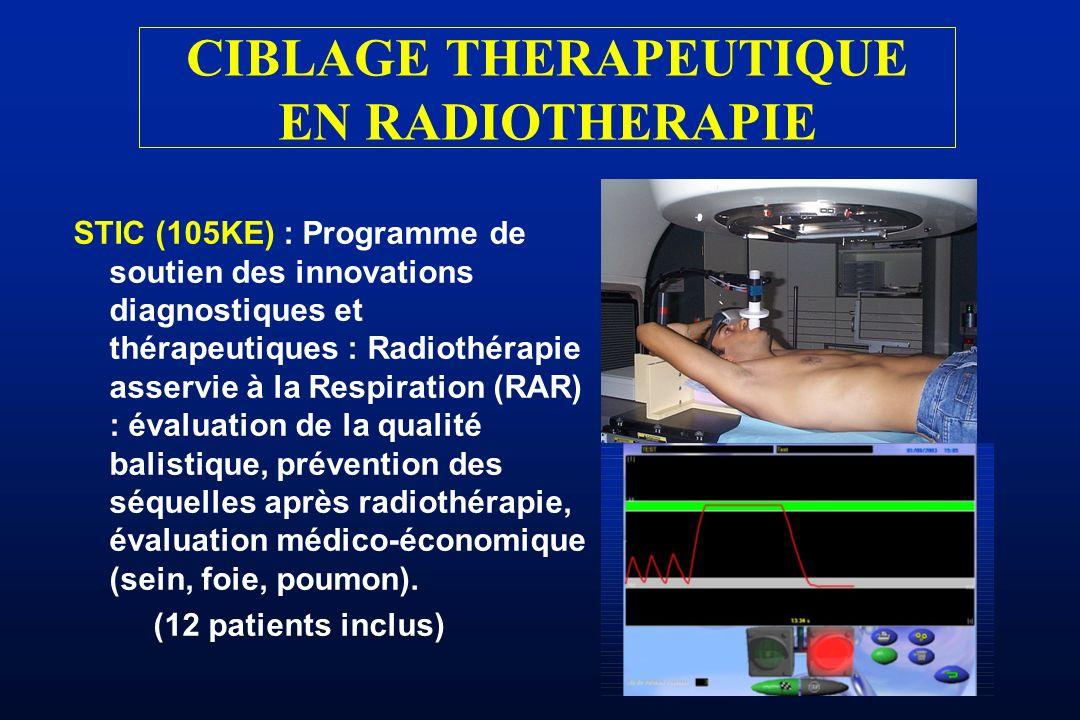 STIC (105KE) : Programme de soutien des innovations diagnostiques et thérapeutiques : Radiothérapie asservie à la Respiration (RAR) : évaluation de la