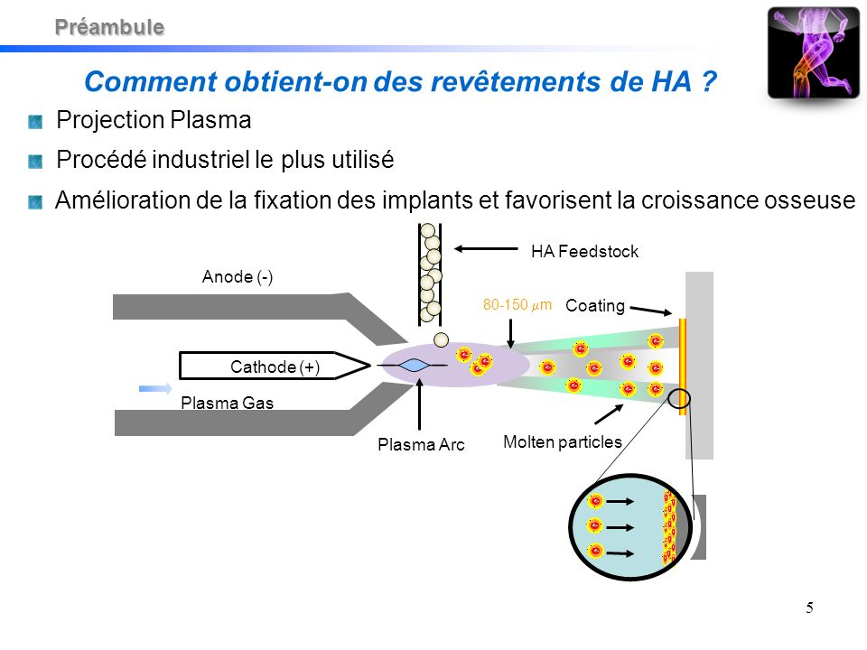 5 Cathode (+) Anode (-) Plasma Gas Plasma Arc HA Feedstock Molten particles Coating 80-150 m Comment obtient-on des revêtements de HA .