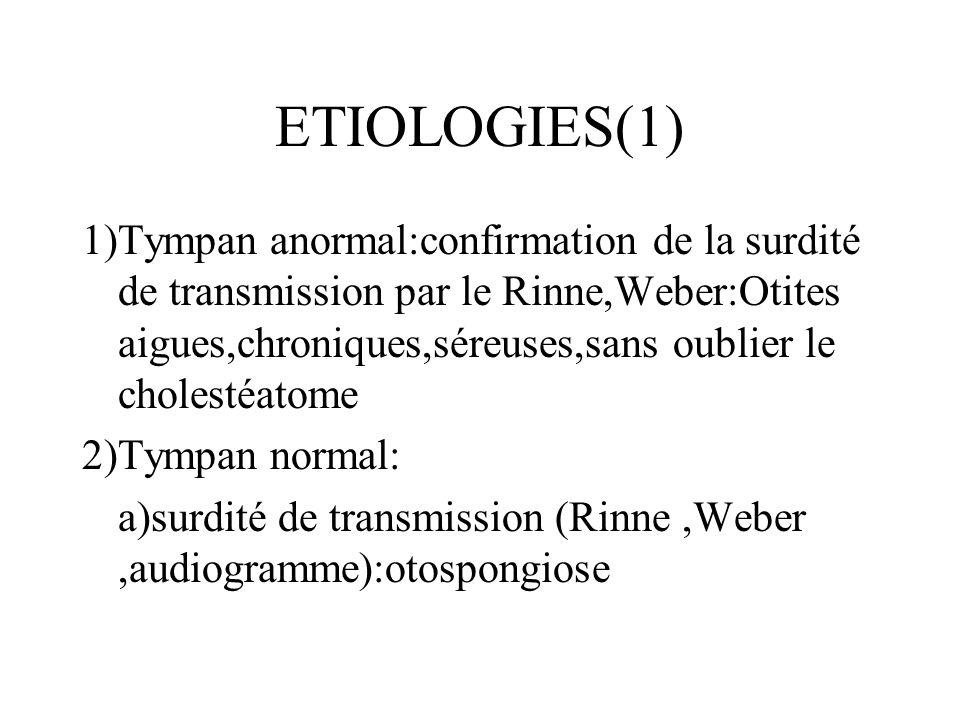 ETIOLOGIES(1) 1)Tympan anormal:confirmation de la surdité de transmission par le Rinne,Weber:Otites aigues,chroniques,séreuses,sans oublier le cholest