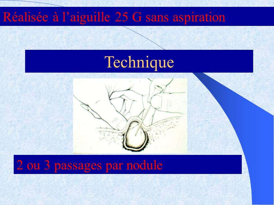 Technique Réalisée à laiguille 25 G sans aspiration 2 ou 3 passages par nodule