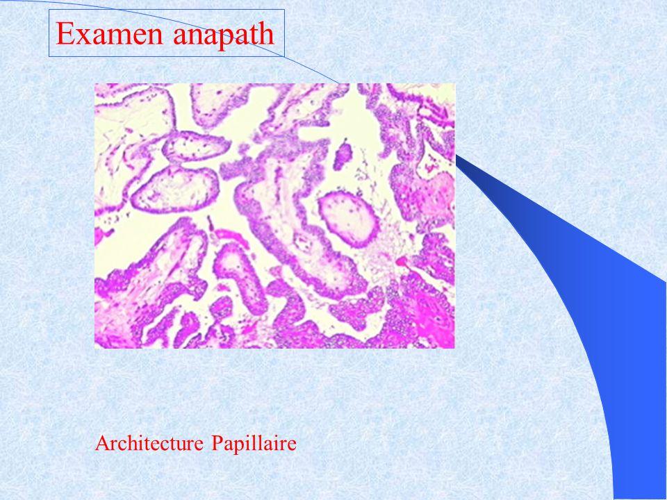 Architecture Papillaire Examen anapath