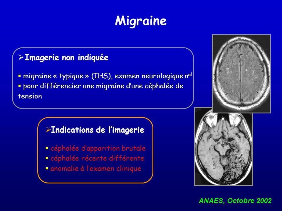 Imagerie non indiquée migraine « typique » (IHS), examen neurologique n al pour différencier une migraine dune céphalée de tension ANAES, Octobre 2002