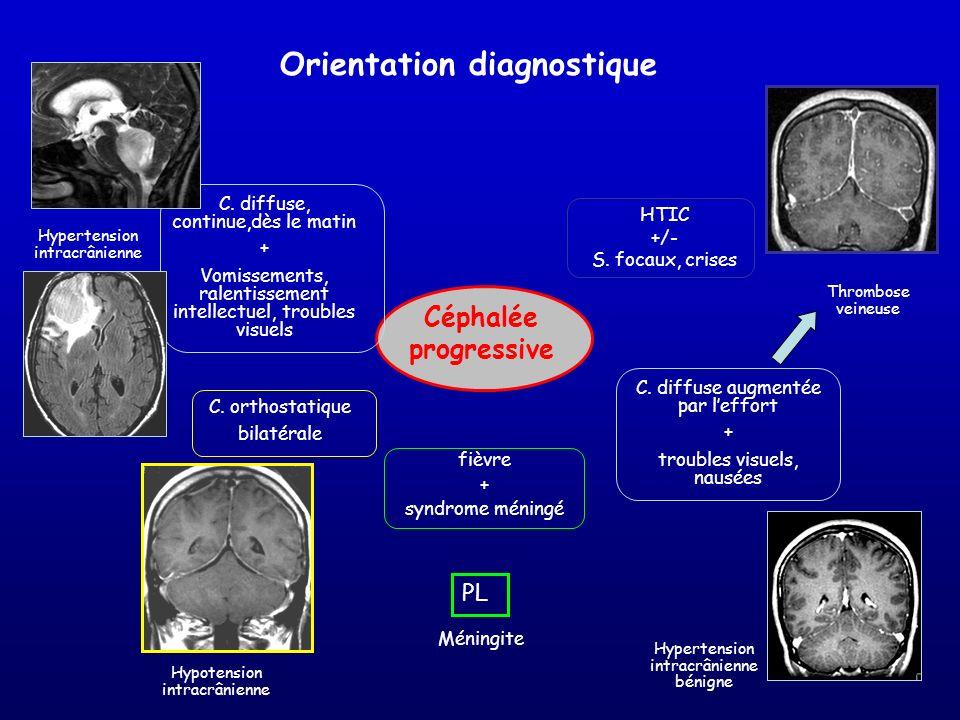 Céphalée progressive fièvre + syndrome méningé Méningite PL C. diffuse augmentée par leffort + troubles visuels, nausées Thrombose veineuse HTIC +/- S