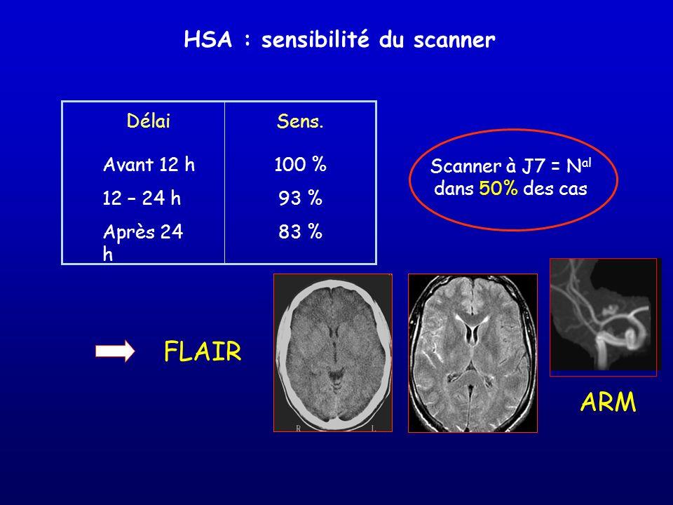 HSA : sensibilité du scanner Avant 12 h 12 – 24 h Après 24 h 100 % 93 % 83 % DélaiSens. Scanner à J7 = N al dans 50% des cas FLAIR ARM