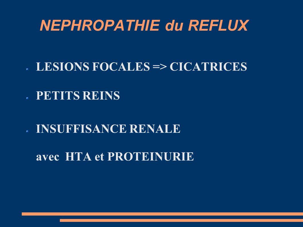 NEPHROPATHIE du REFLUX LESIONS FOCALES => CICATRICES PETITS REINS INSUFFISANCE RENALE avec HTA et PROTEINURIE