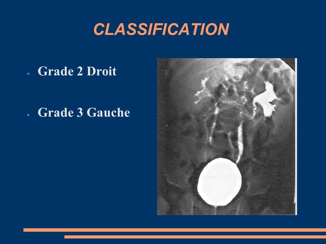 CLASSIFICATION Grade 2 Droit Grade 3 Gauche