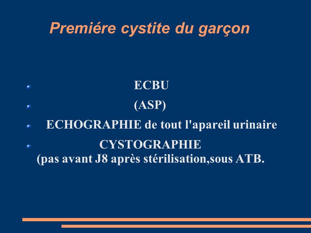 Premiére cystite du garçon ECBU (ASP) ECHOGRAPHIE de tout l apareil urinaire CYSTOGRAPHIE (pas avant J8 après stérilisation,sous ATB.