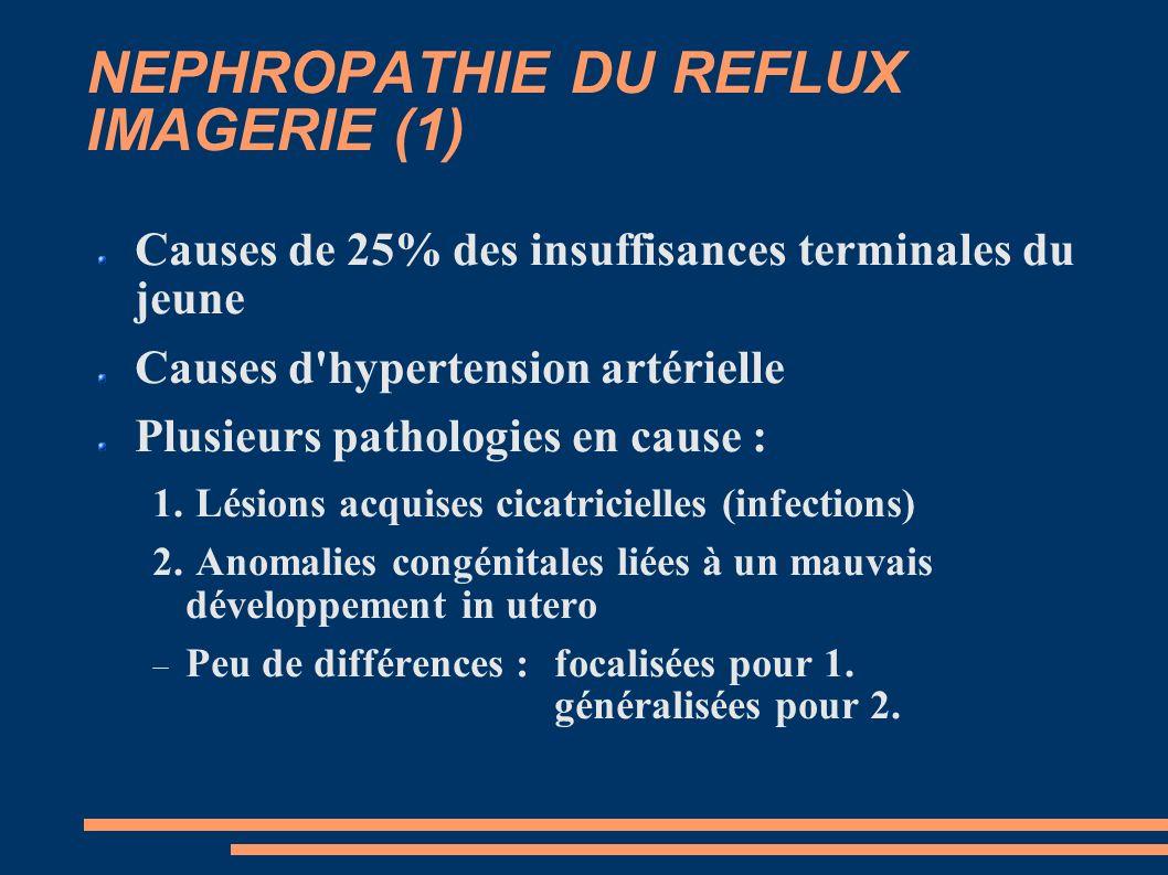 NEPHROPATHIE DU REFLUX IMAGERIE (1) Causes de 25% des insuffisances terminales du jeune Causes d hypertension artérielle Plusieurs pathologies en cause : 1.