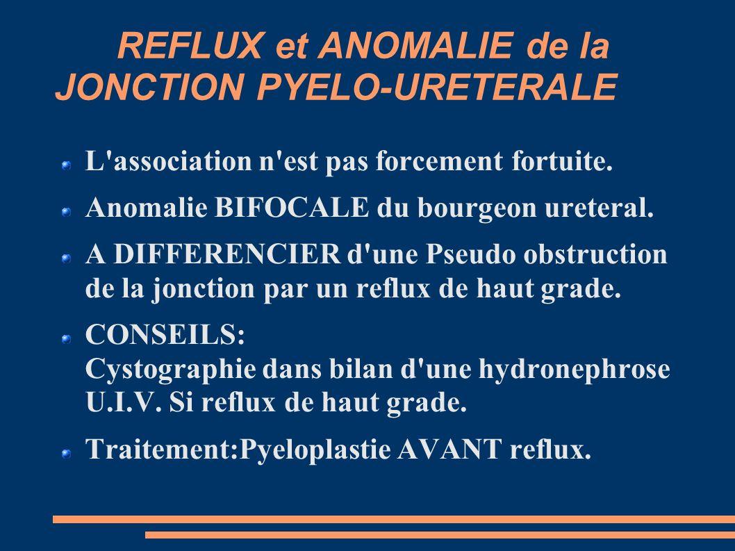 REFLUX et ANOMALIE de la JONCTION PYELO-URETERALE L association n est pas forcement fortuite.