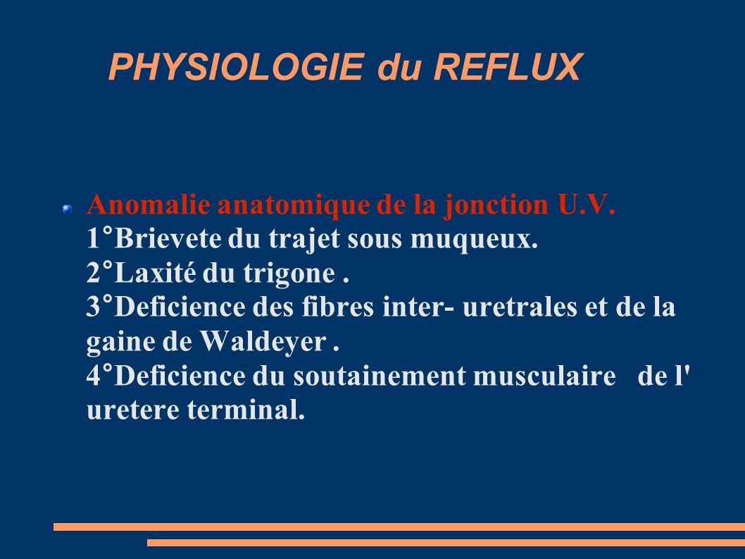 PHYSIOLOGIE du REFLUX Anomalie anatomique de la jonction U.V.